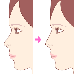 nose_prothesis1.png